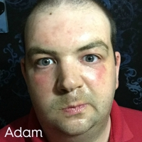 Adam 2 Mud Pack Selfie